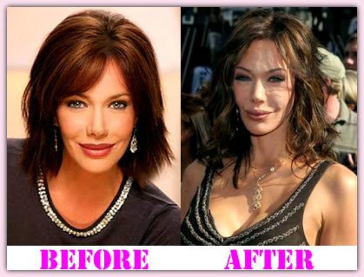 plastic-surgery-disasters-reconstructive-miracles