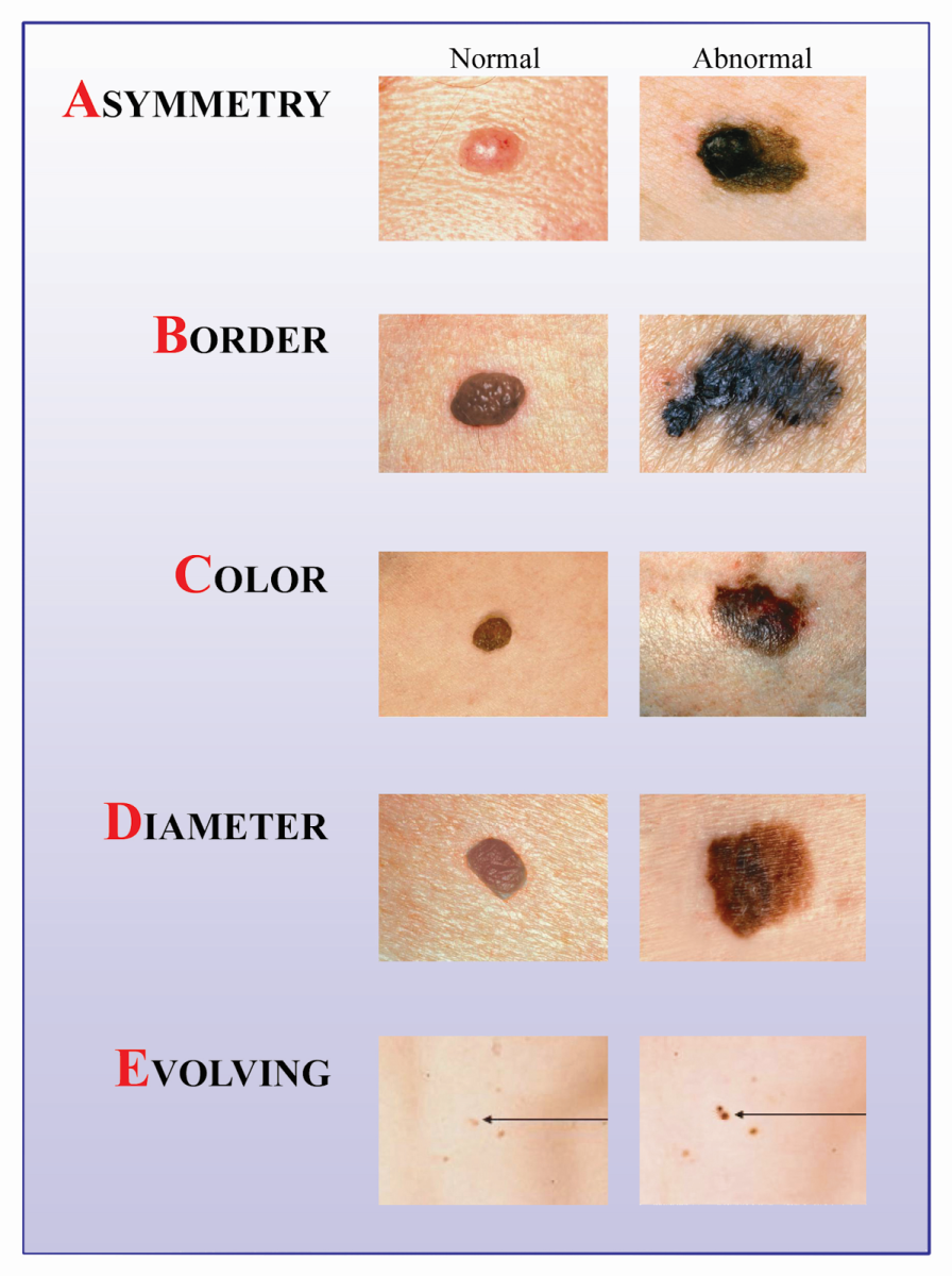 Take The Time To Check Your Body For Skin Signs Of Skin Cancer. Do It Yourself Using A Mirror, Or Enlist A Friend