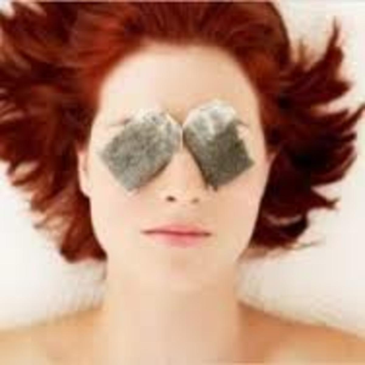 Try Placing Teabags All Over Your Face When It's Sunburned