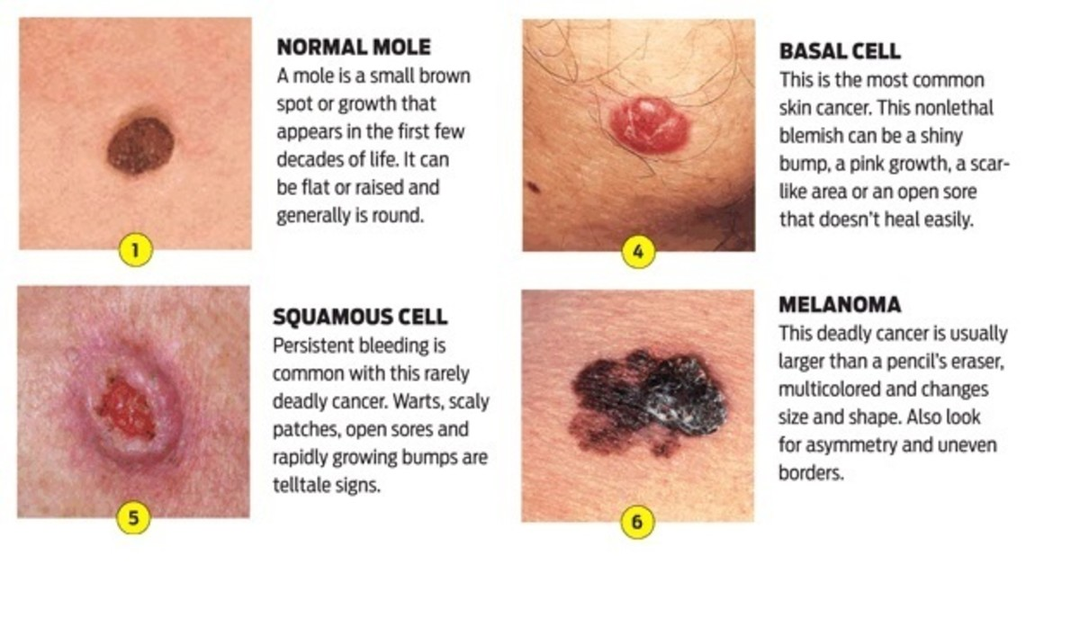Different types of skin cancer.