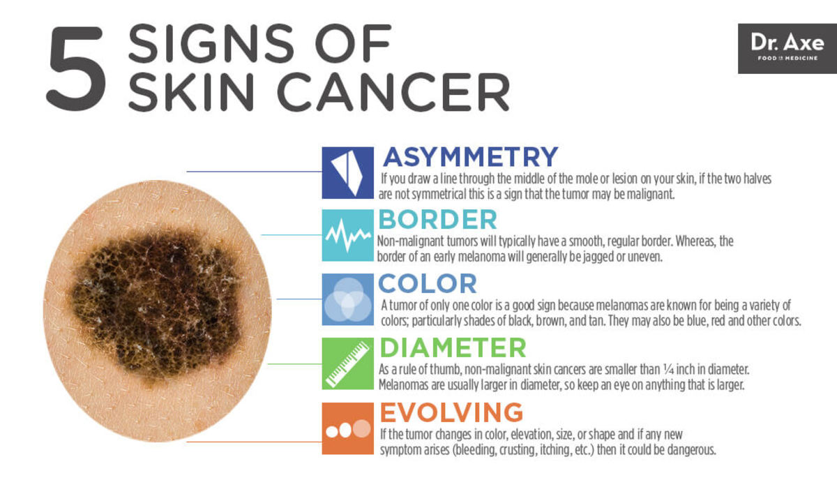Skin Cancer Symtomps