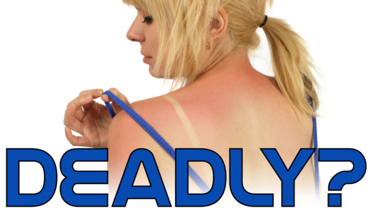 The Truth about Causes skin Cancer