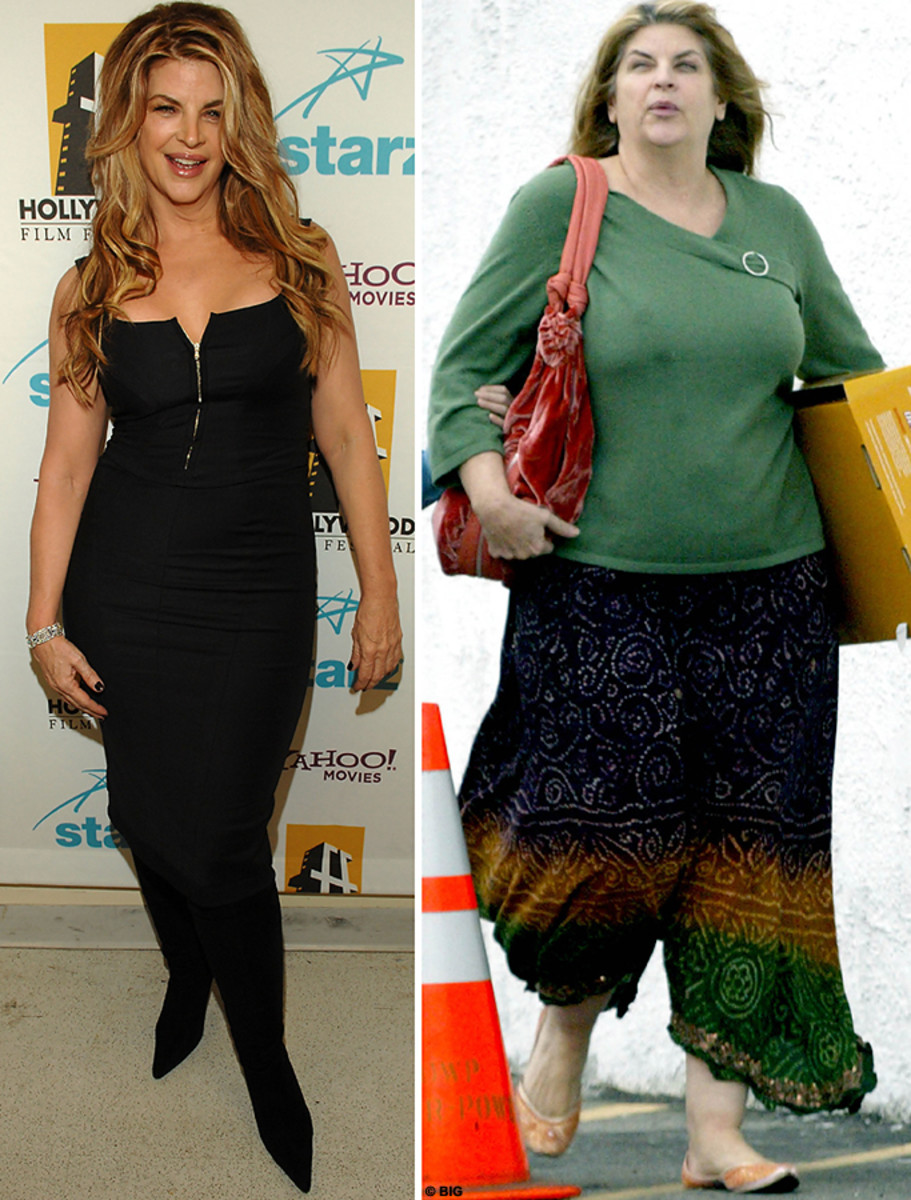 Kirstie Alley before and after pic #3