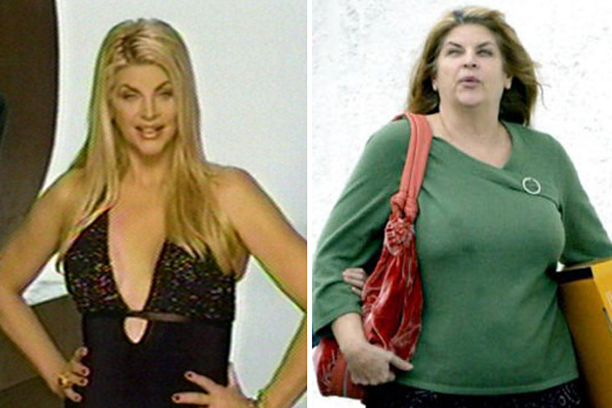 Kirstie Alley before and after pic #1