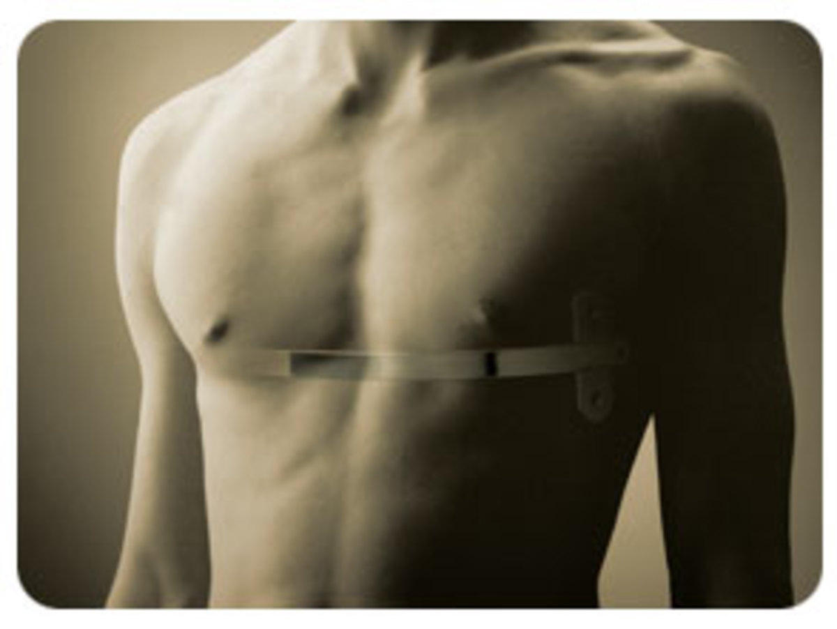 Pectus Excavatum PostOperative Care - Maintaining Chest Appearance after Surgery