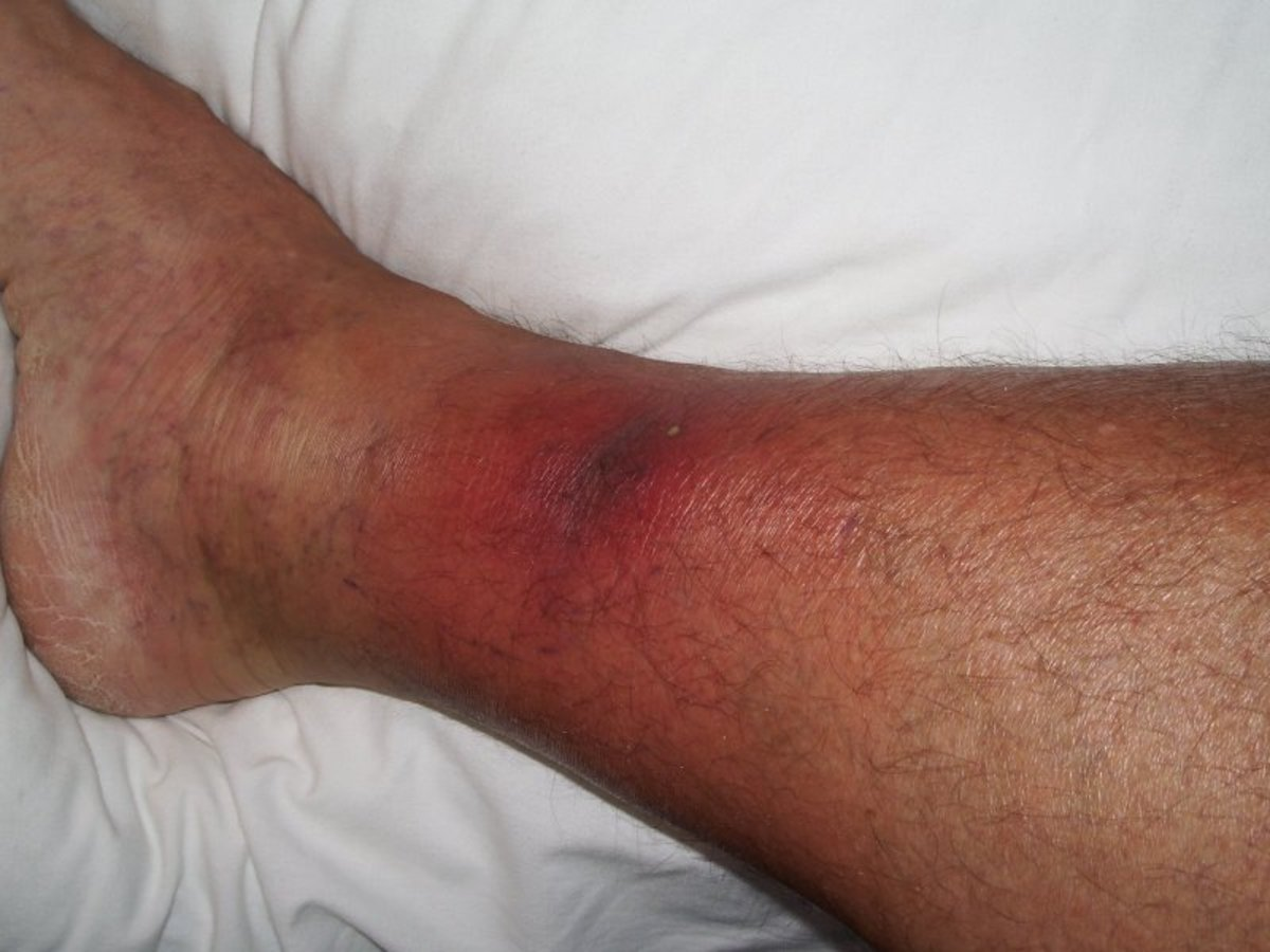 My encounter with the flesh eating disease Streptococcus aka necrotizing fasciitis bacteria