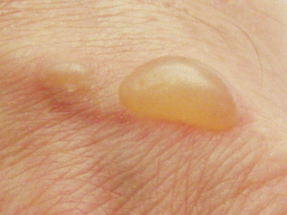 Vaginal Blisters and Sores: Dont Panic!