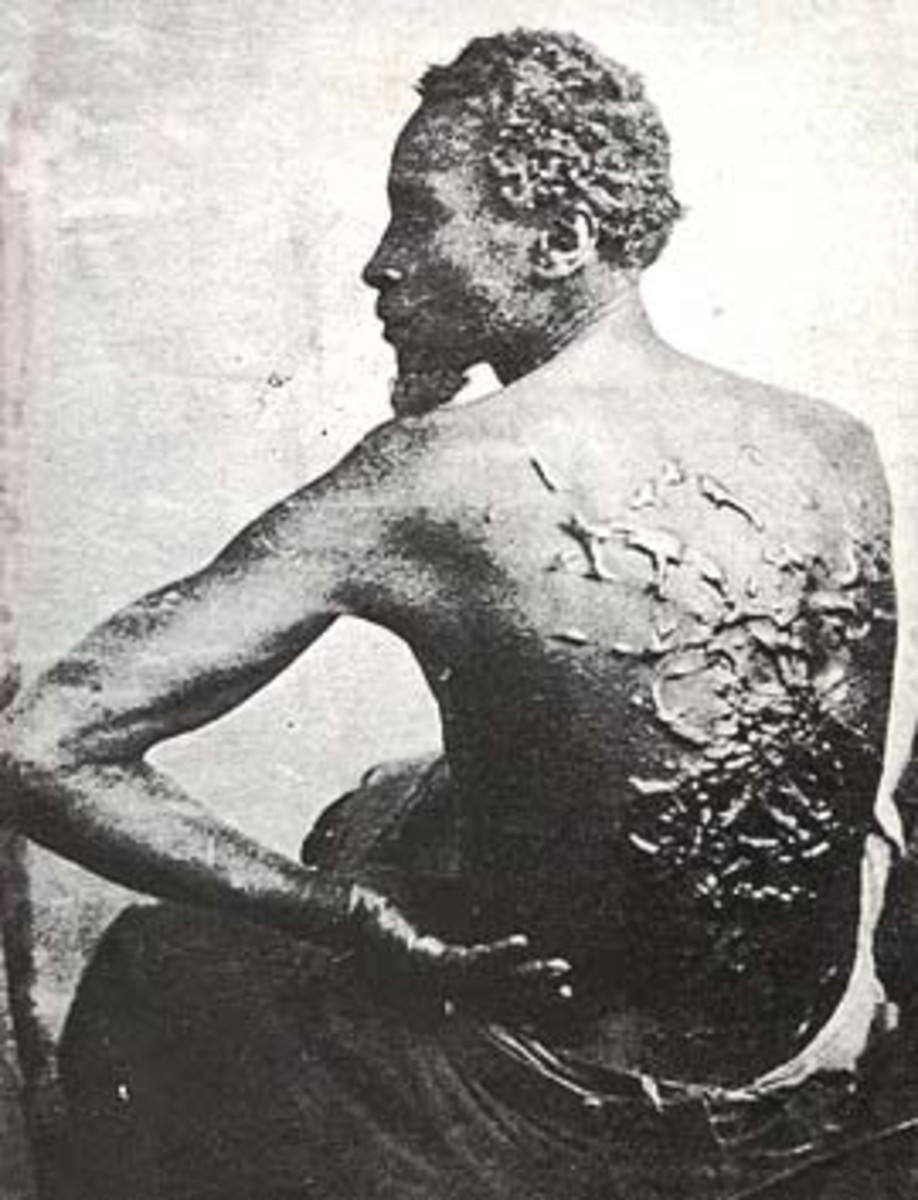 Multiple scars on the back of a slave from being whipped by his master
