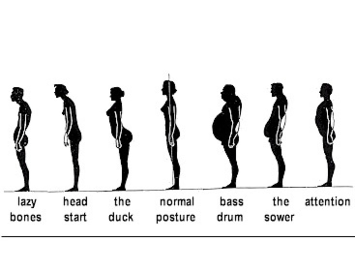 Typical range of postures.