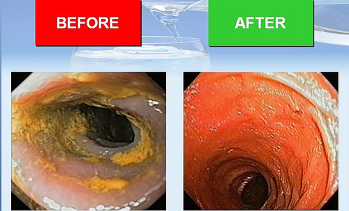 Photo Credit: http://www.natural-colon-cleanse.net/