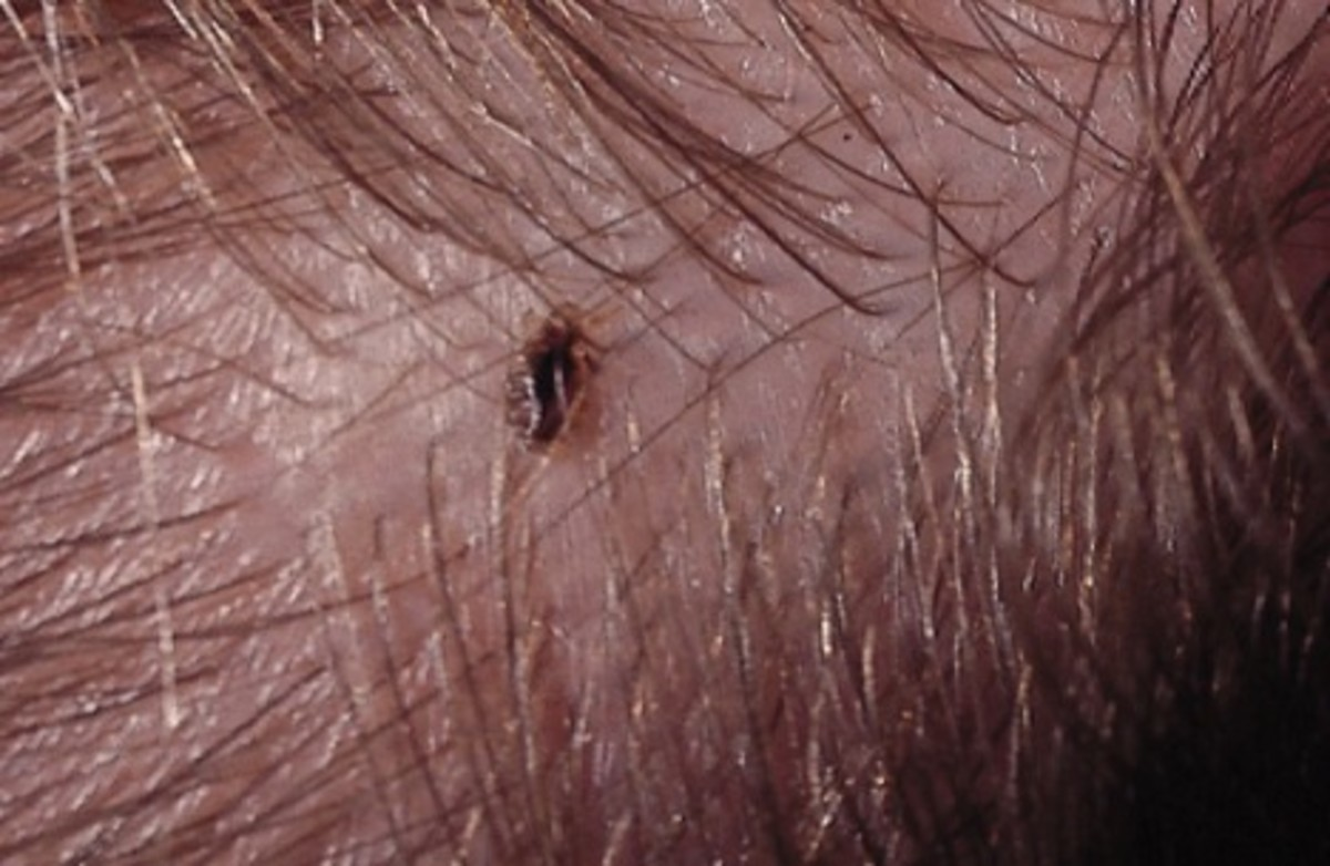 An adult head louse.