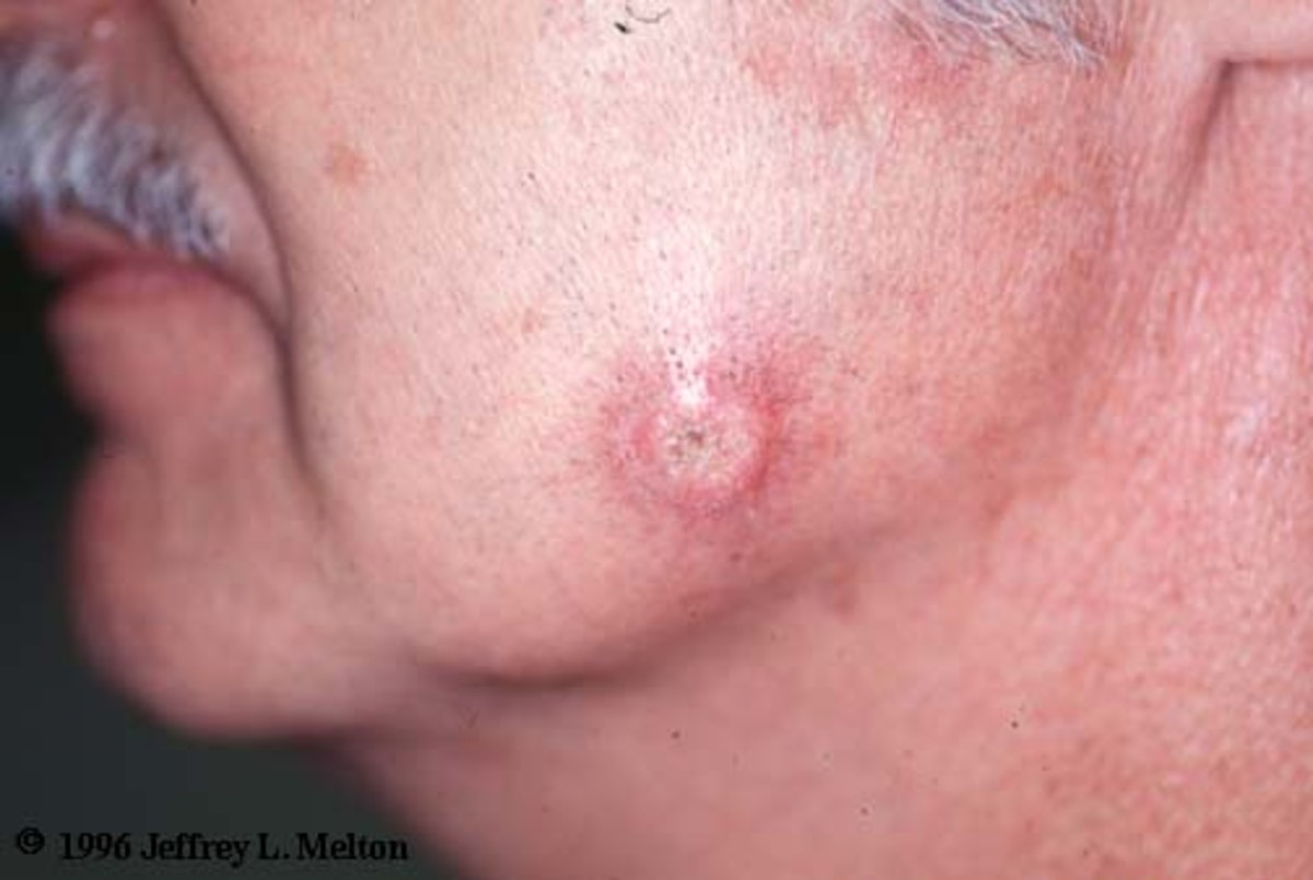 Squamous Cell Carcinoma On Cheek