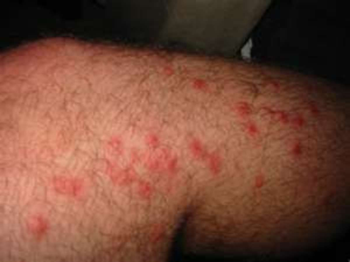 The Best Poison Ivy Rash, Poison Oak Bumps, Sumac Puss, and Bug Bites That Itch Cures