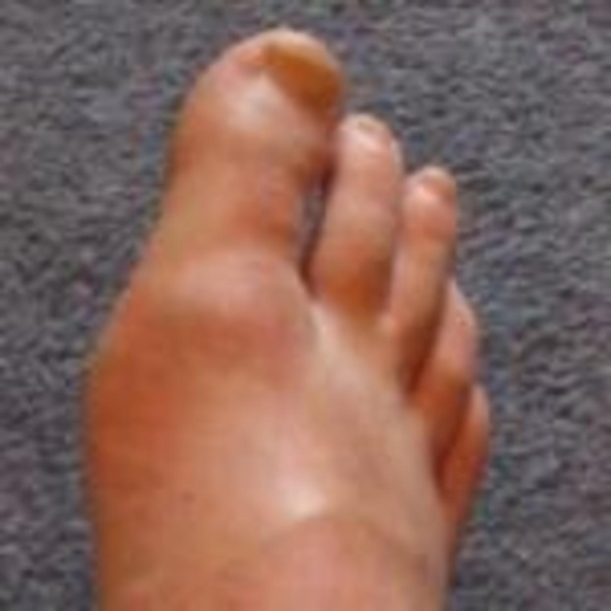 A typical gout attack