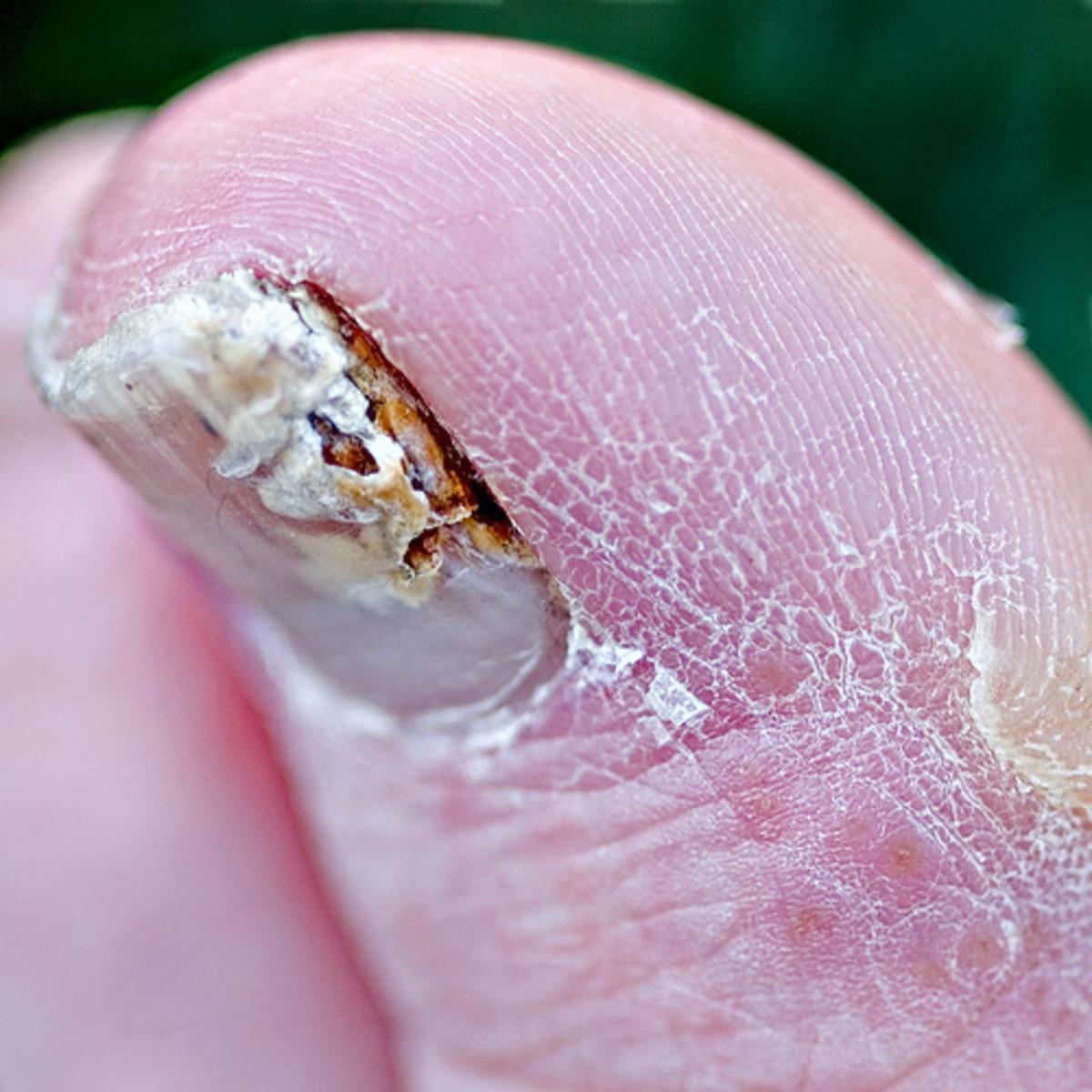 Toenail Fungus: Fusarium Infection