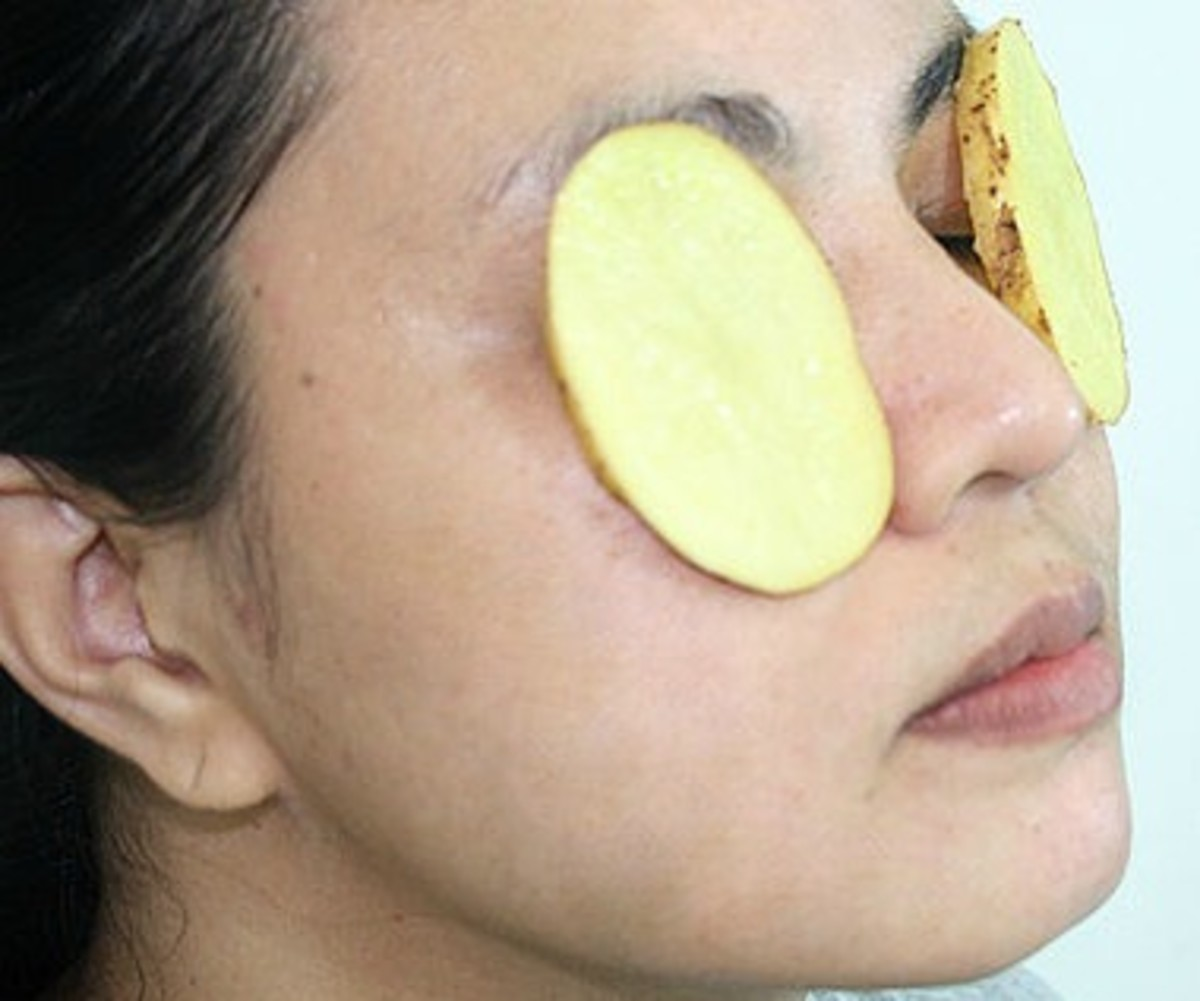 Slice cool idaho potatoes on the eyes to reduce puffiness