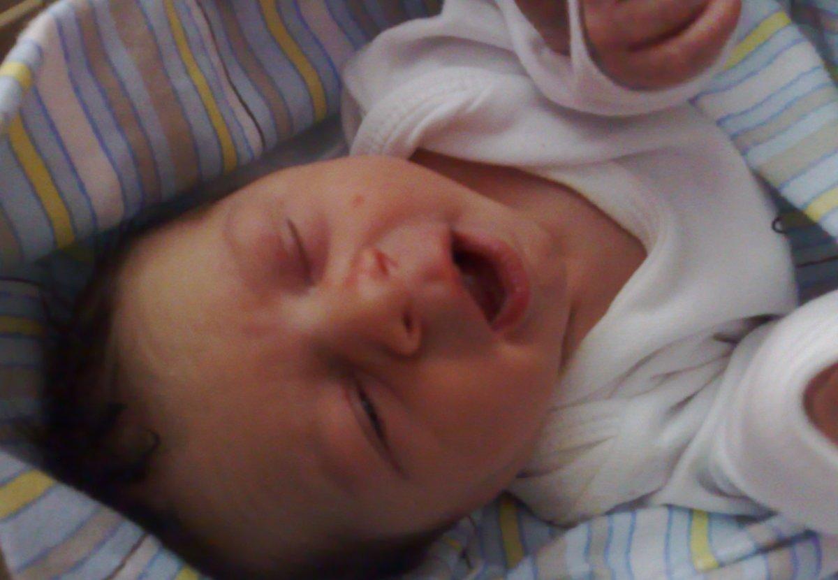 baby-healing