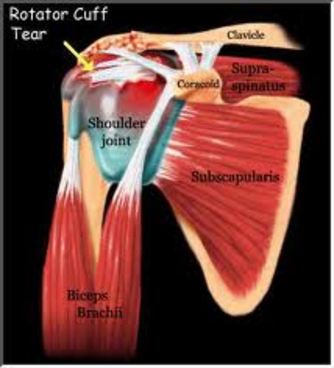 How to Strengthen the Rotator Cuff