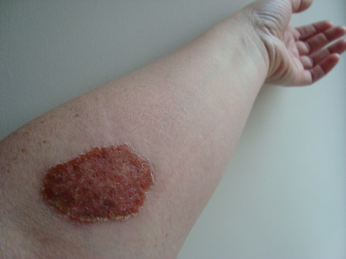 Skin Test Site - Day 12