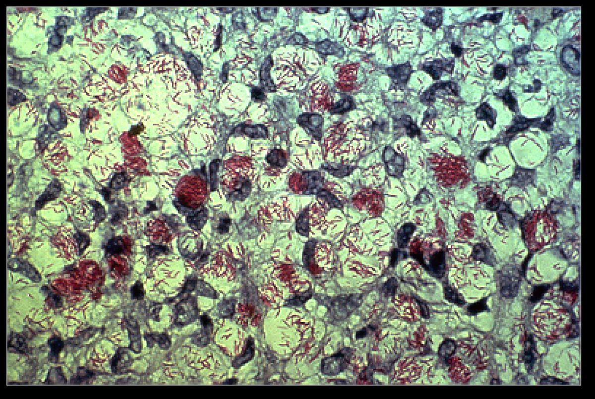 Slide of Mycobacterium Leprae