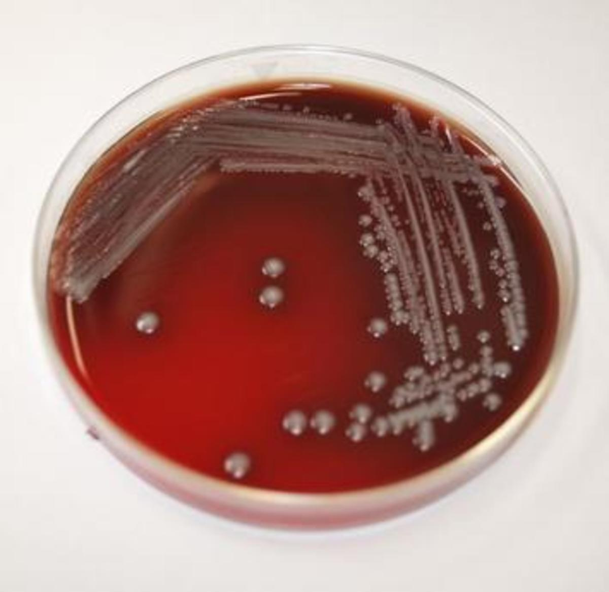 "Agar of yersinia pestis, causative agent of the ""black death"""