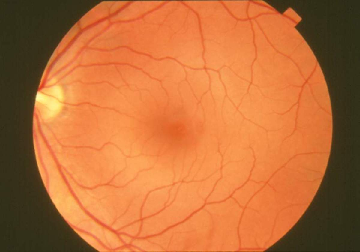 This is a photograph of a Normal healthy Retina, note the defined blood vessels as compared to the Retina below