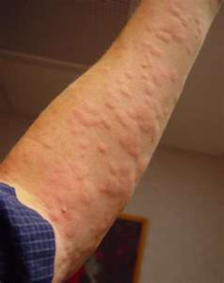 Hives Symptoms, Can Stress Cause Rash and Treatment to Help Allergic Reaction