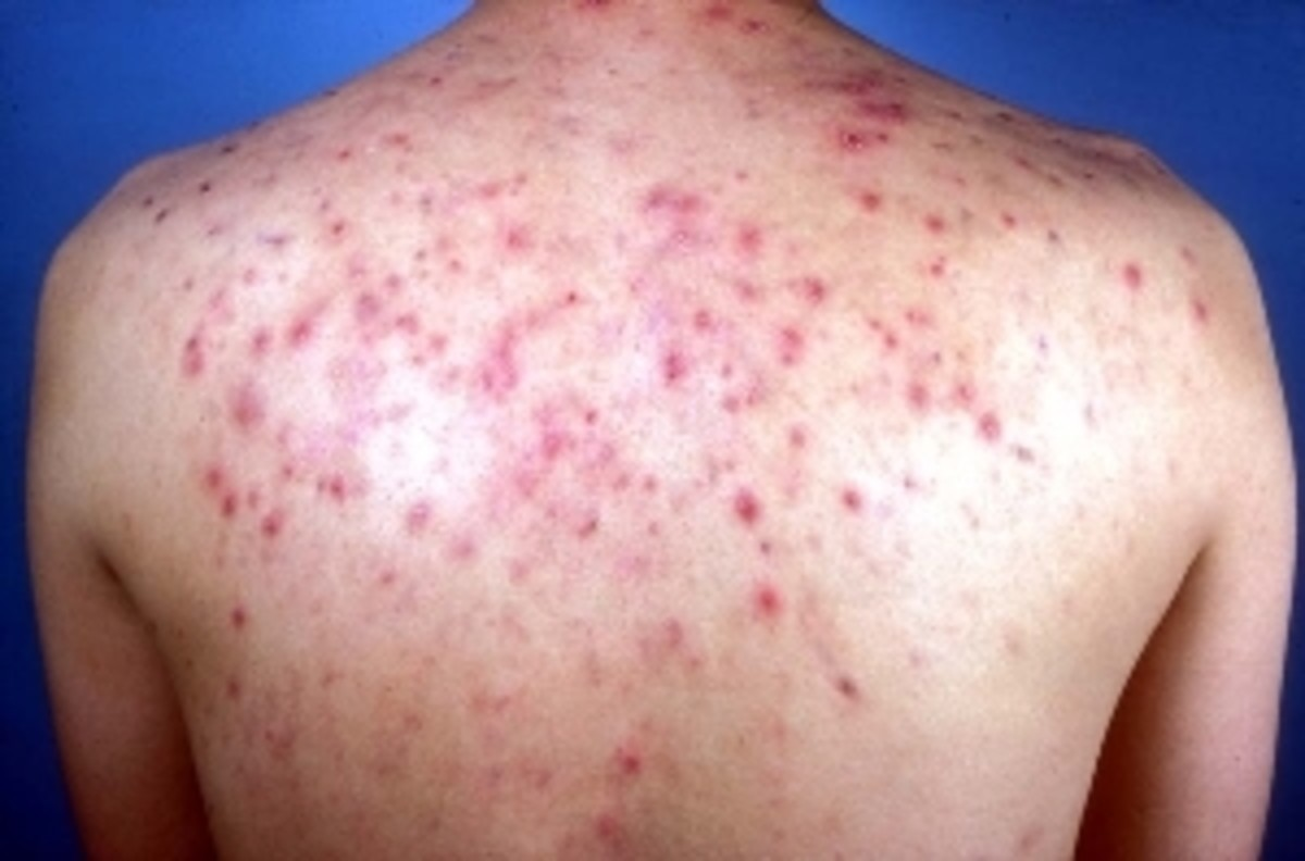Yes you can cure back acne and it may be easier than you think.