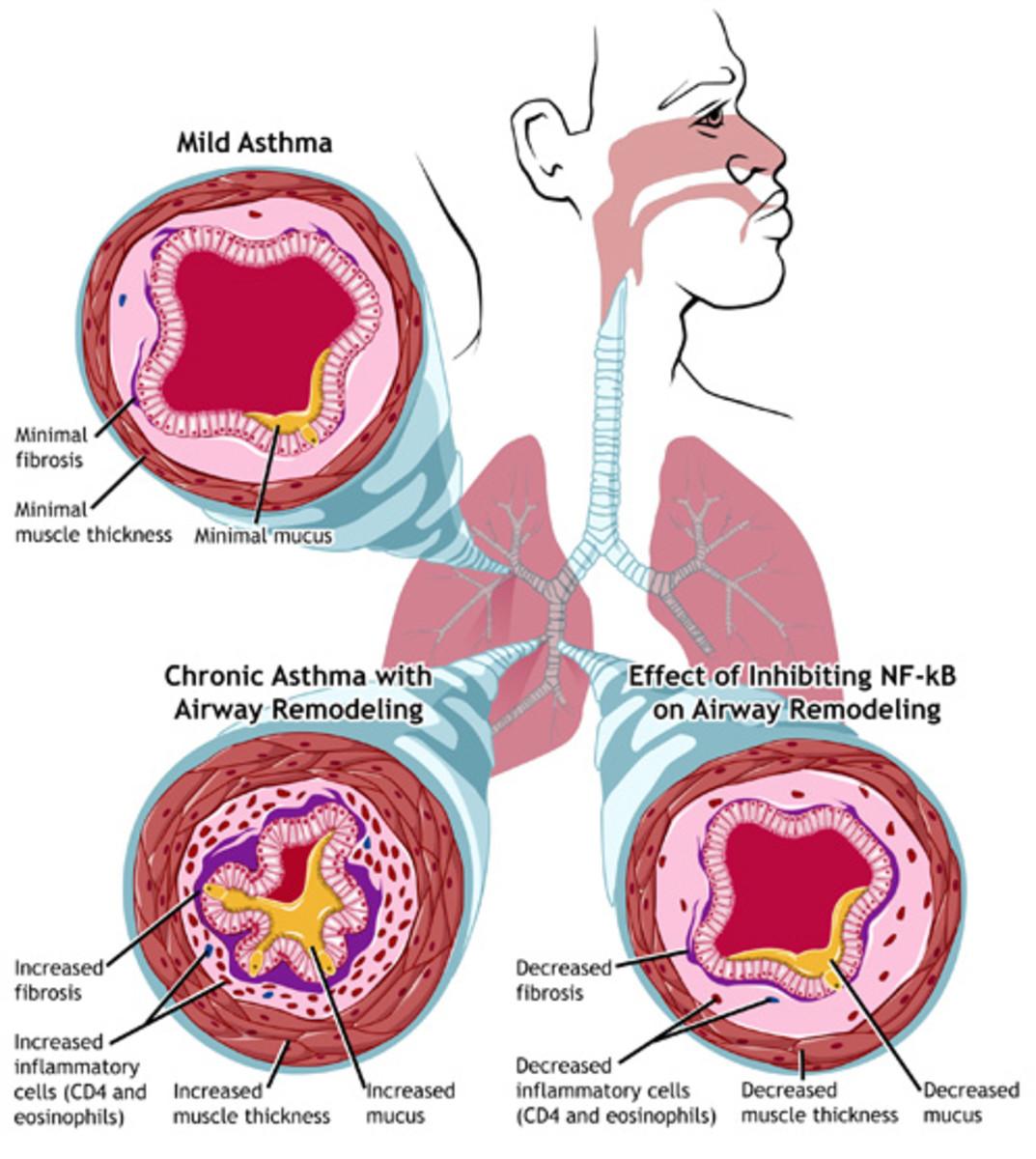 Why do Children Get Asthma