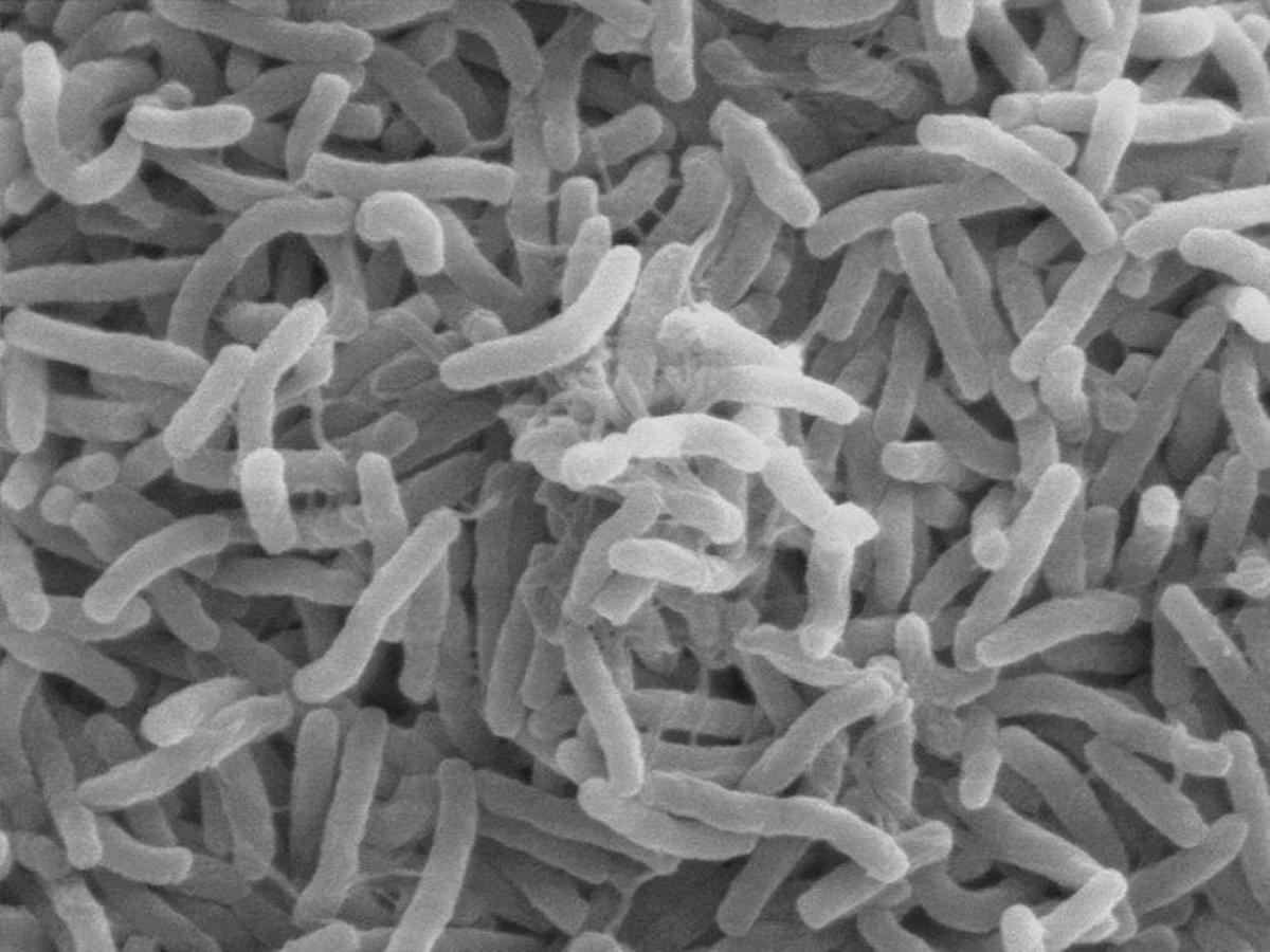 Bacteria : General Characteristics & Its Economic Importance