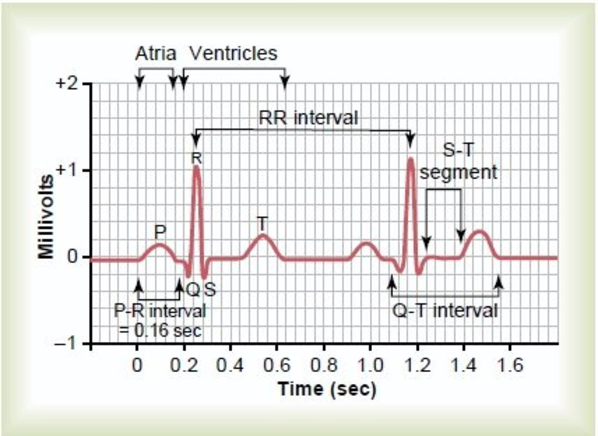 How to read a normal ECG(Electrocardiogram)?