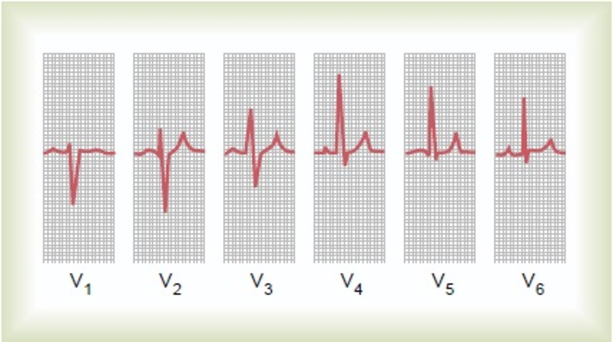 Normal ECG in 6 precordial leads