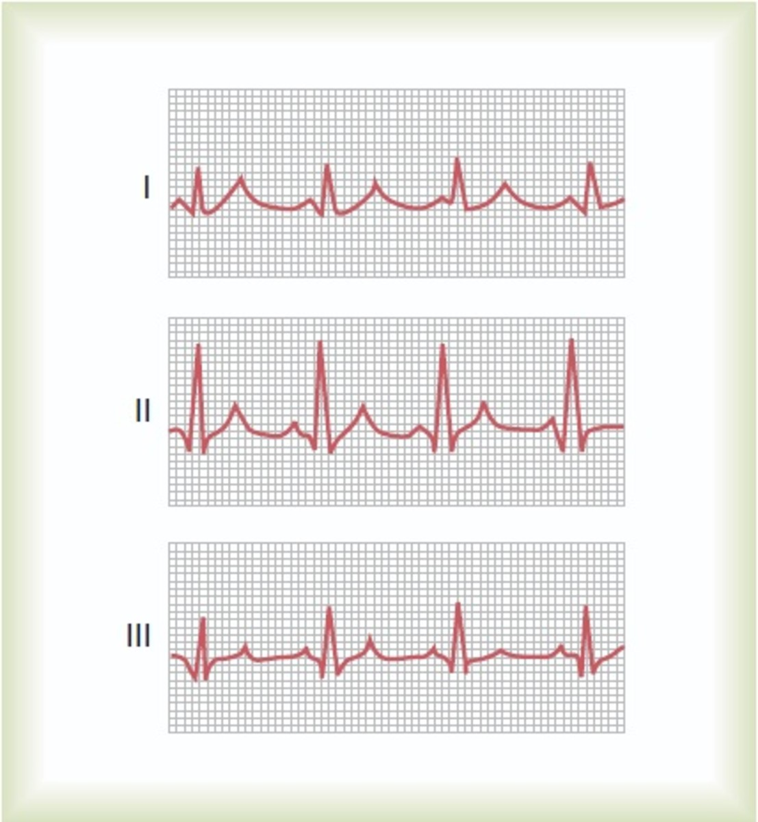 Normal ECG in 3 bipolar limb leads