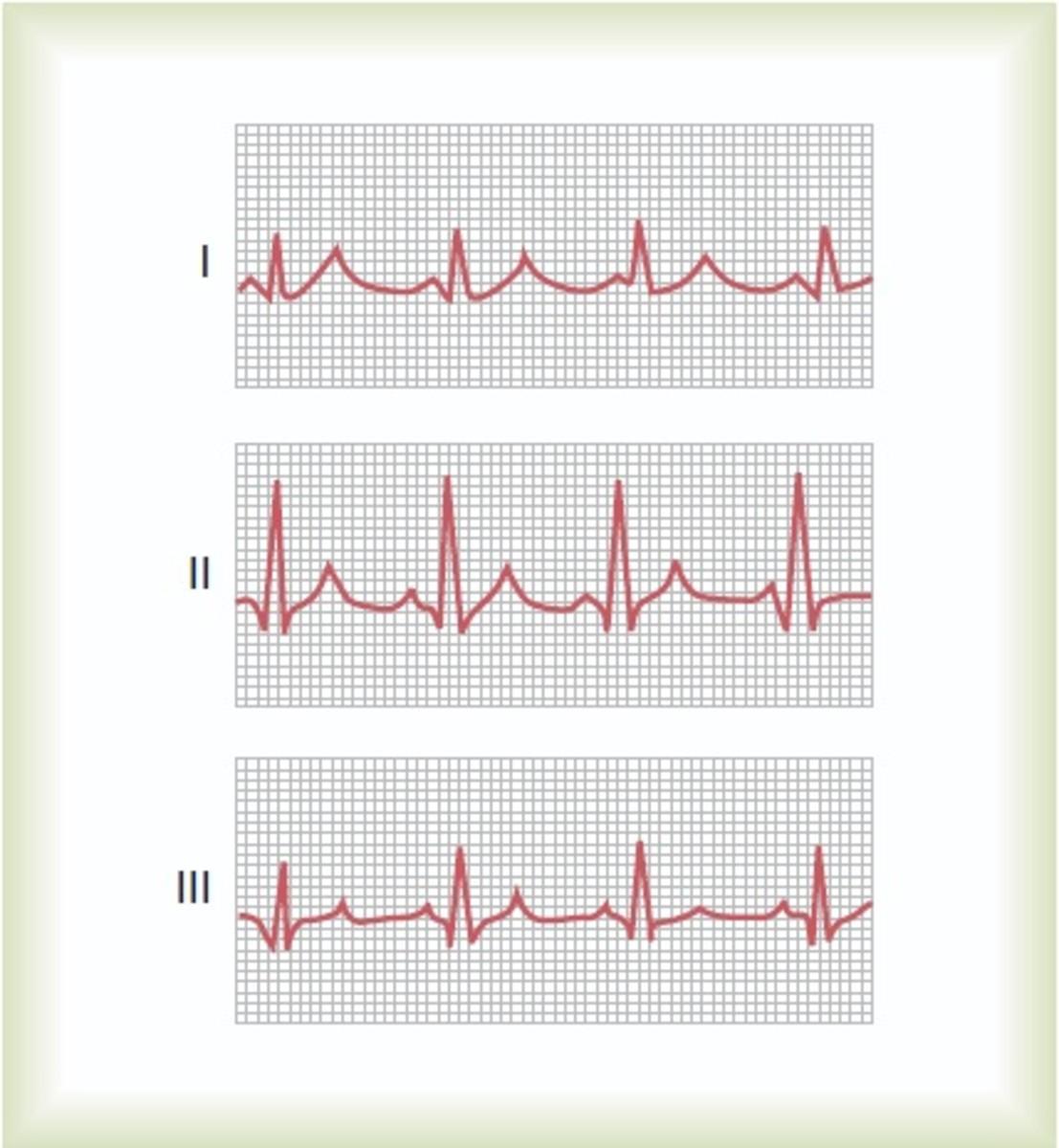 Normal ECG in 3 bipolar limb leads