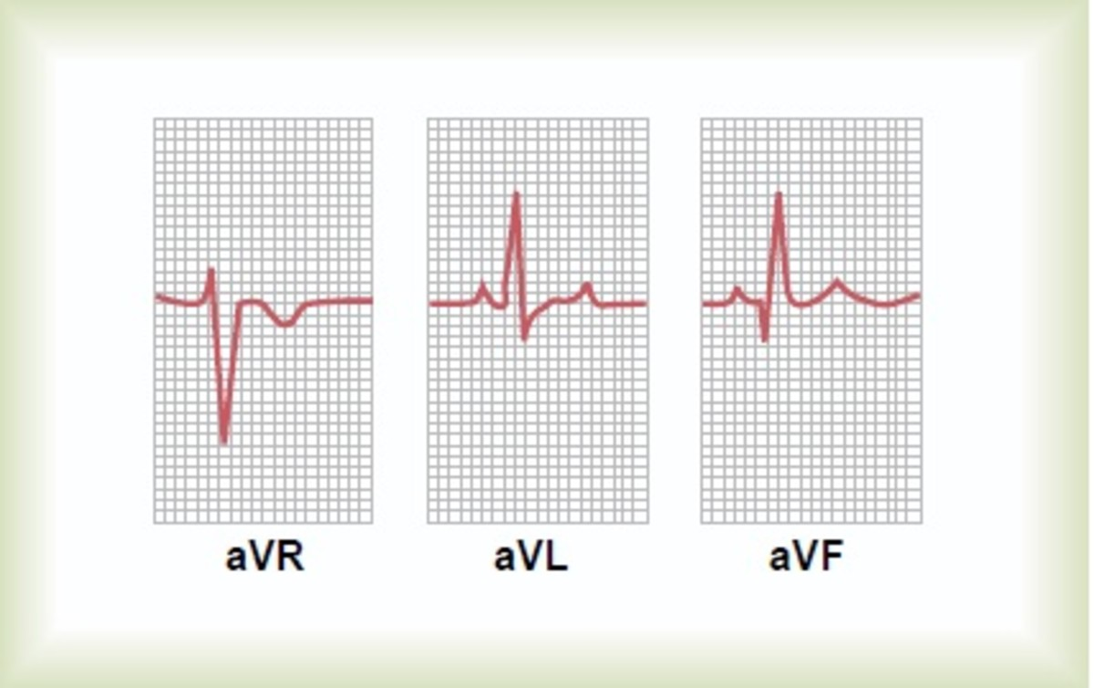 Normal ECG in augmented unipolar limb leads