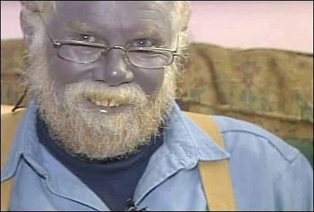 Paul Karason developed blue skin after using colloidal silver. Ironically, he was trying to treat a skin condition.