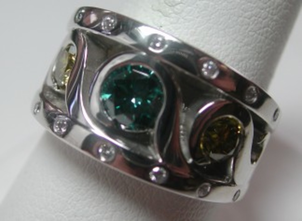 A custom platinum band that required a finger exercise regimen.