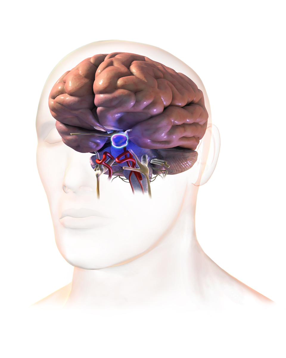 Pituitary Tumor (Tumor Inside the Brain)- My Experience