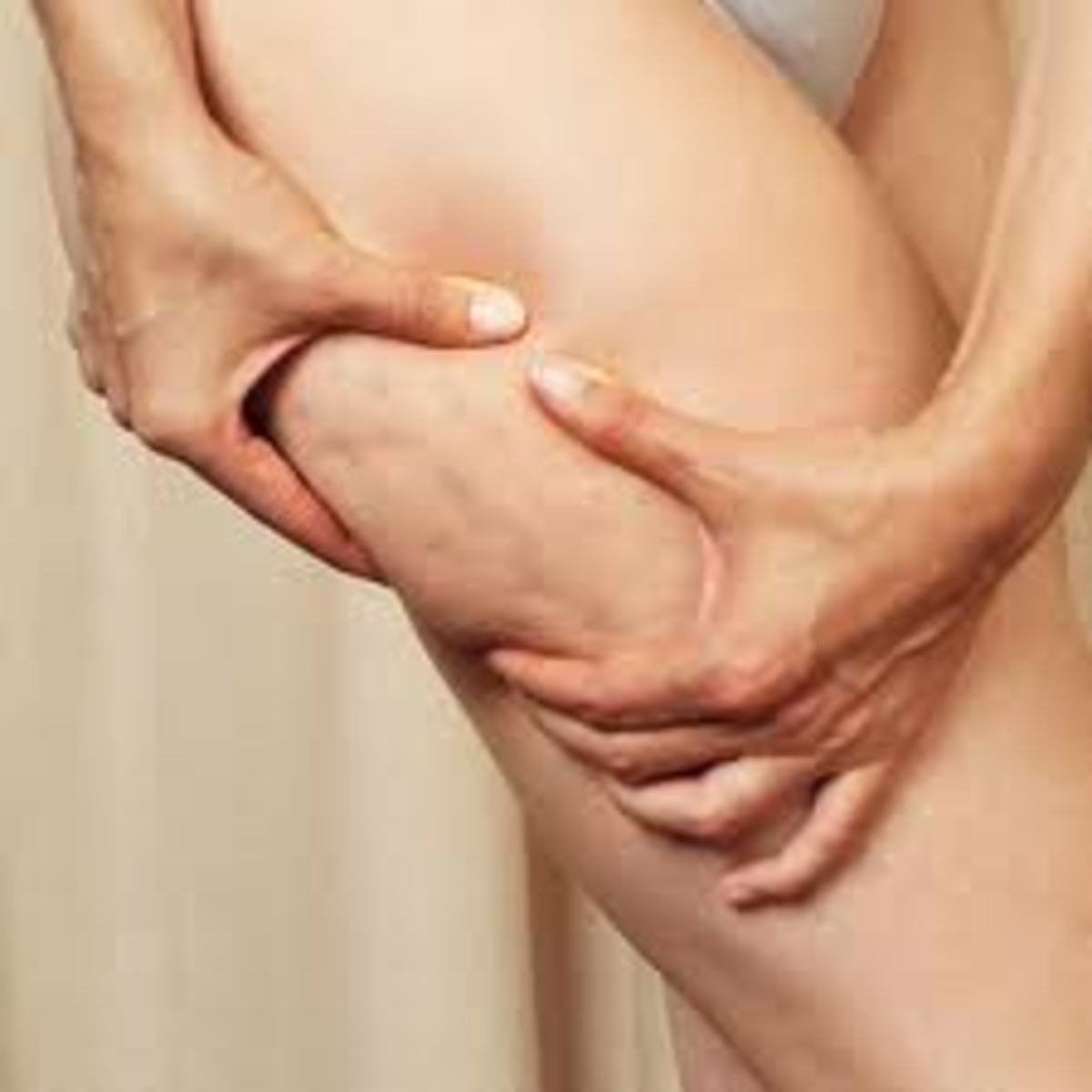 Example of cellulite on thighs