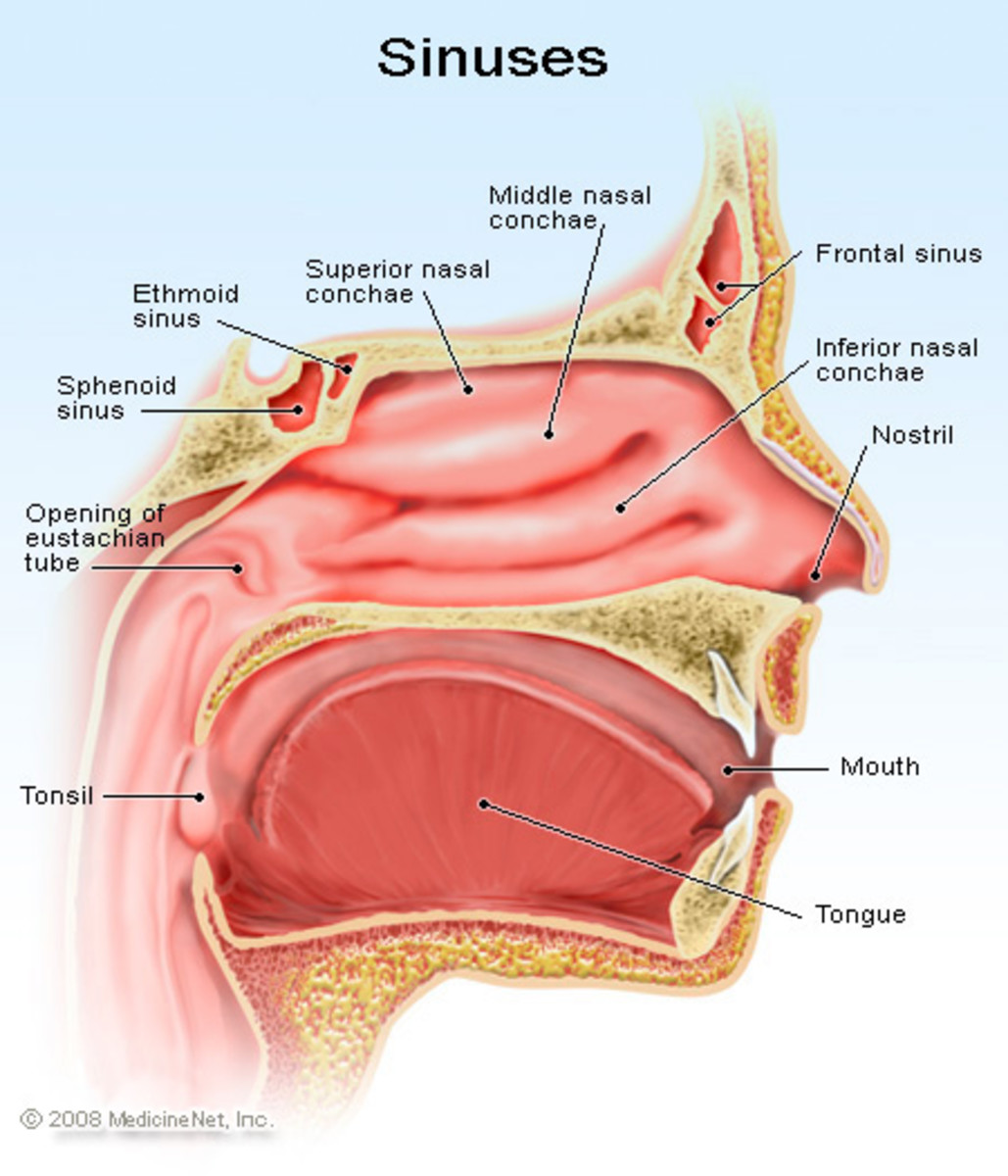 Sinusitis - A very lowering and painful infection.
