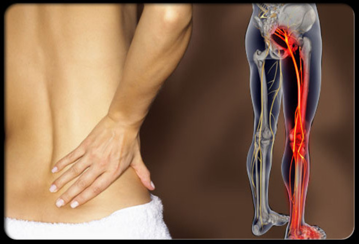 Acute and Chronic Sciatica - Causes and removing the pain.