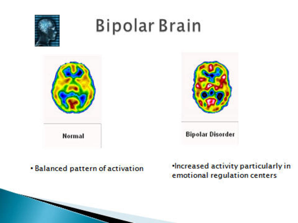 Bipolar brain VS a normal brain