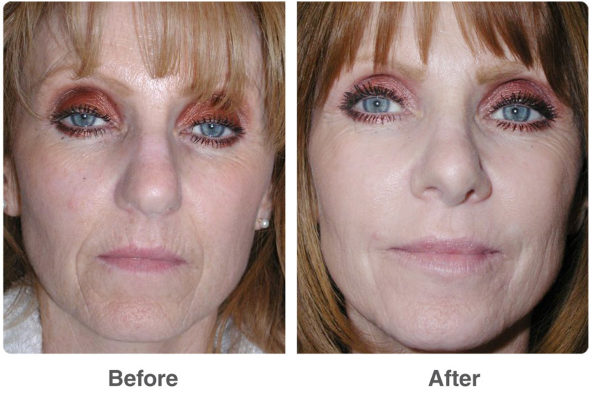 Before and After multiple chemical peels