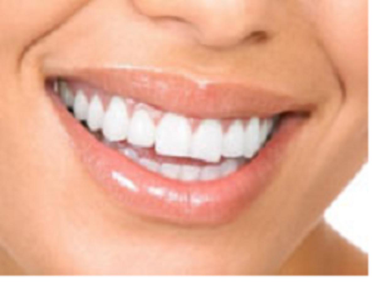Beautiful natural whitened teeth