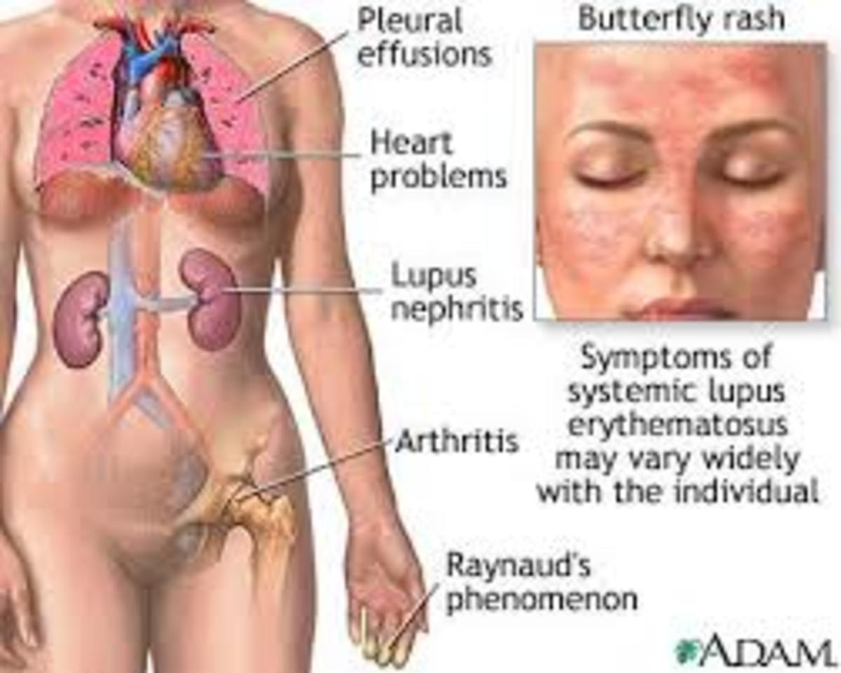The effect of Lupus on the body