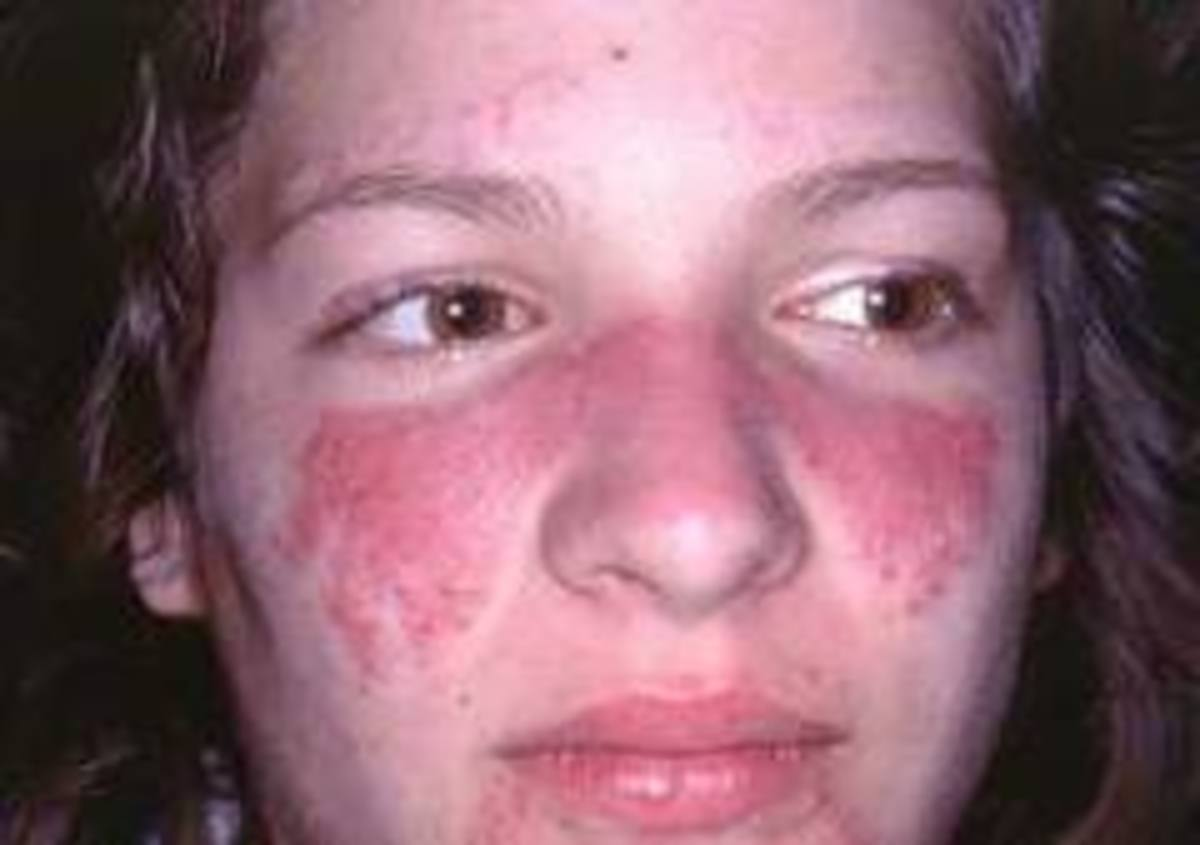 Butterfly rash in Lupus