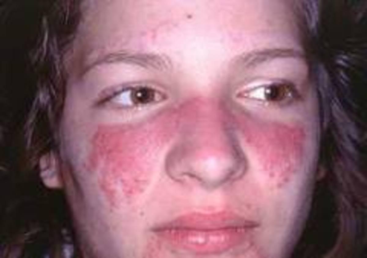 Butterfly rash in Lupus