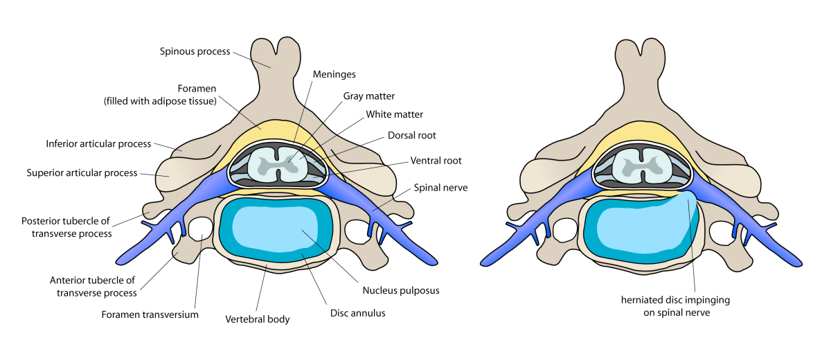 Diagram of preconditions for Anterior cervical discectomy and fusion.
