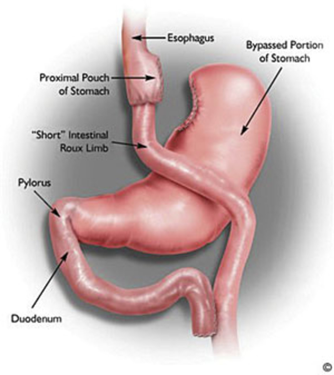 What is Roux-en-Y Gastric Bypass surgery (Bariatric Surgery)?