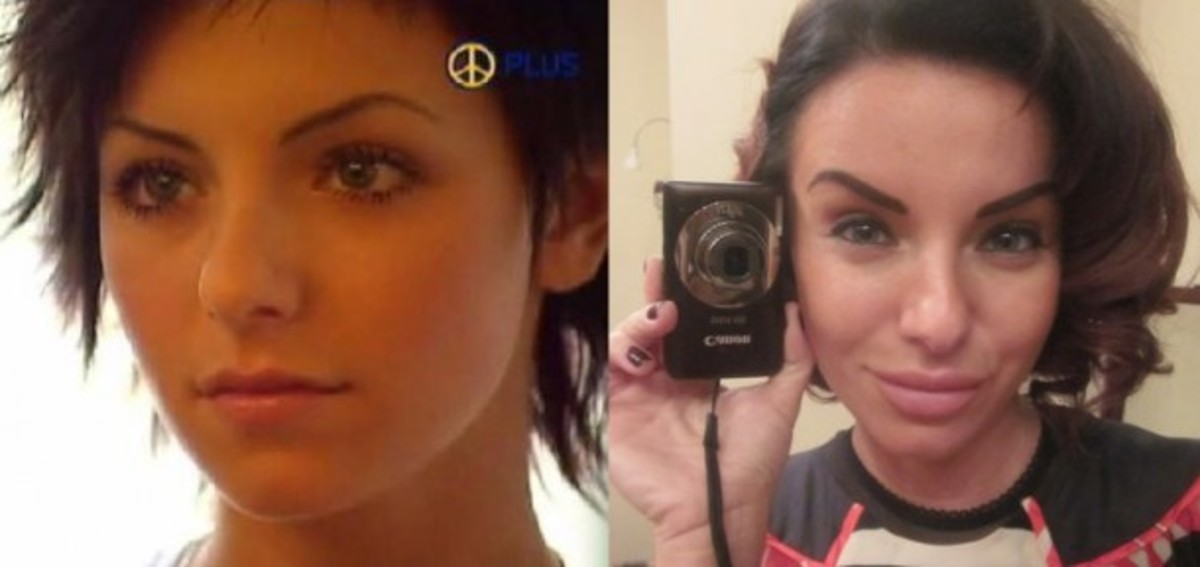 Julia Volkova before and after plastic surgery.